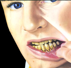 "The effects of chewing tobacco on a teen. An overhead from the anti-tobacco college lecture program ""Tobacco Wars!"" courtesy of the American Cancer Society."